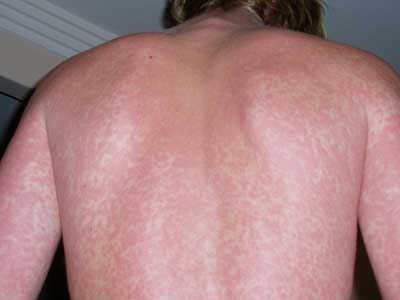 Dengue fever skin rash